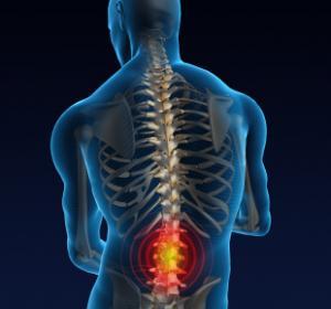 Causes douleurs lombaires